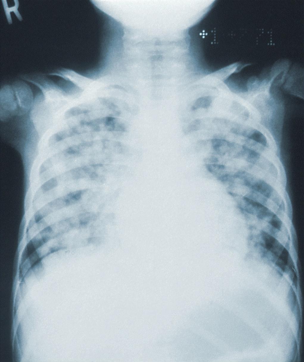 Pneumonia on X-ray